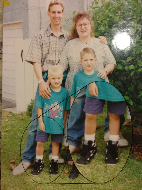 A family picture of after I got out of my cast showing my leg length difference.